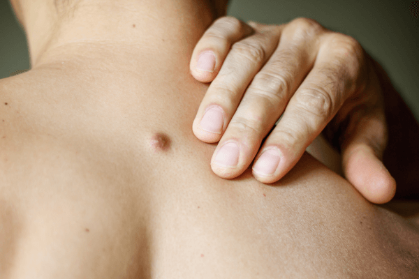 Skin tag removal for women in Handsworth, Handsworth Wood, Aston, Perry Barr, Witton, Birchfield and Lozells – Birmingham.
